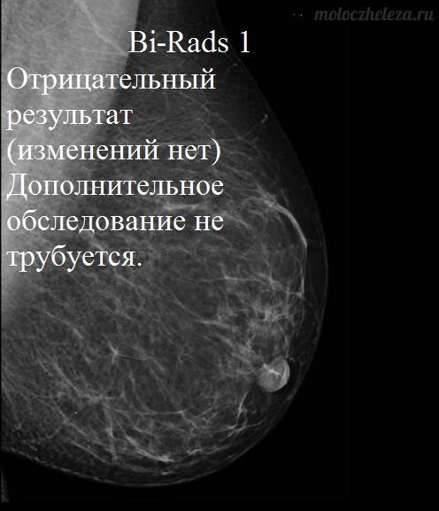 Заключение: bi-rads-4