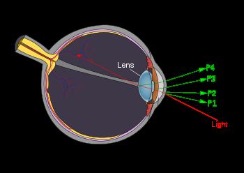 Острота зрения и зрение 1: что это такое и как проверить. отличие от диоптрий.