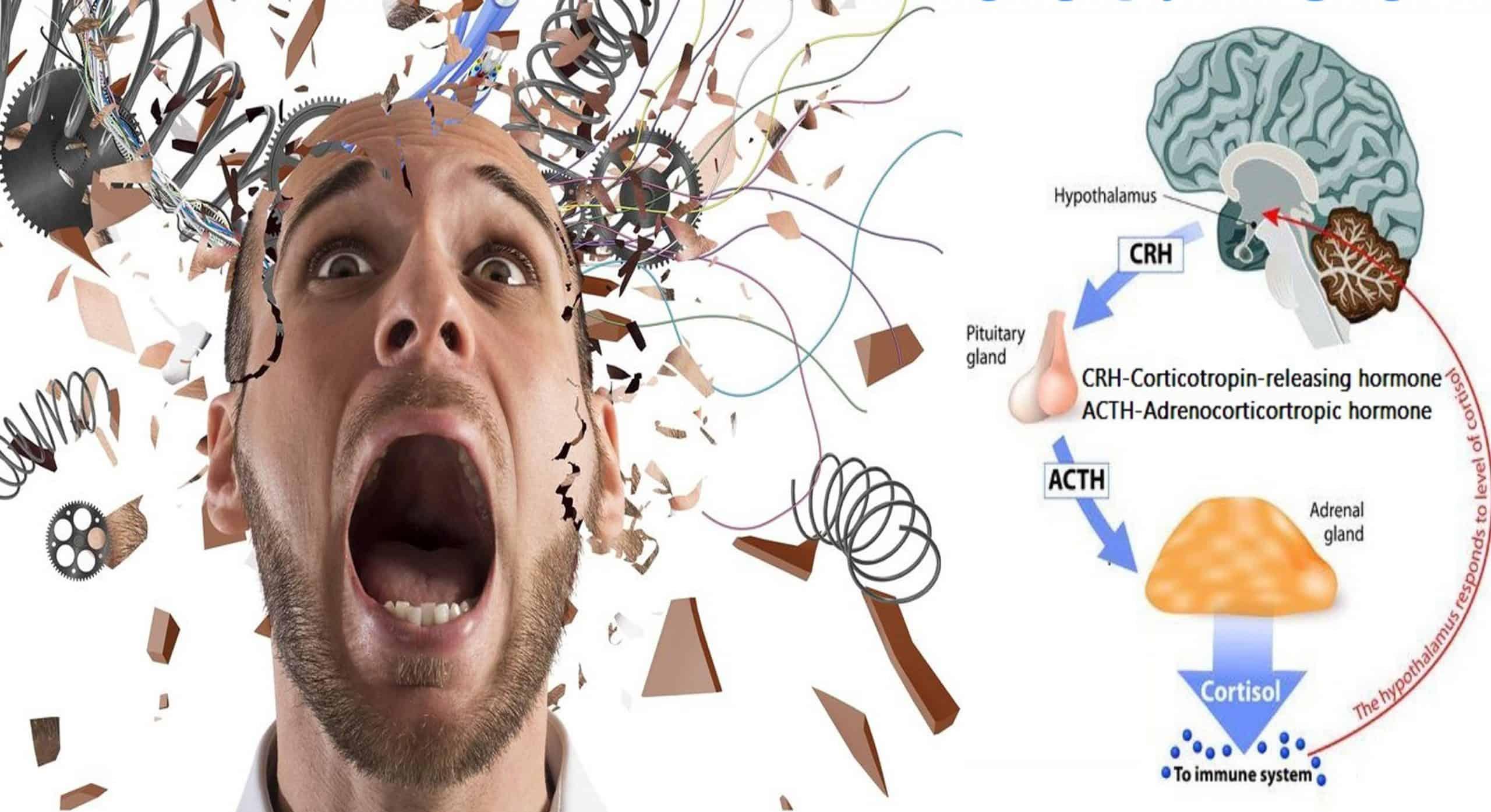 Стресс в психологии: определение, признаки, лечение