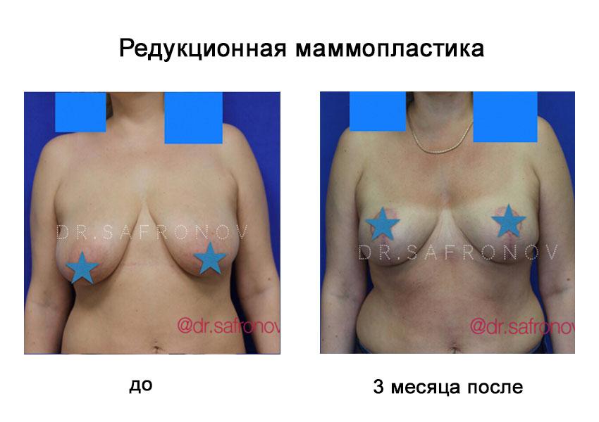 Маммопластика груди: все, что нужно знать о процедуре