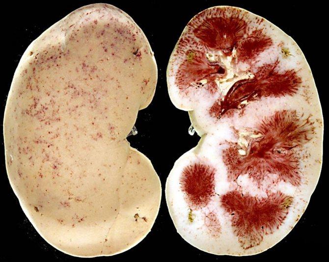 Тубулоинтерстициальный нефрит (хронический и острый): что это такое, причины, симптомы, диагностика, лечение, прогноз, особенности у детей
