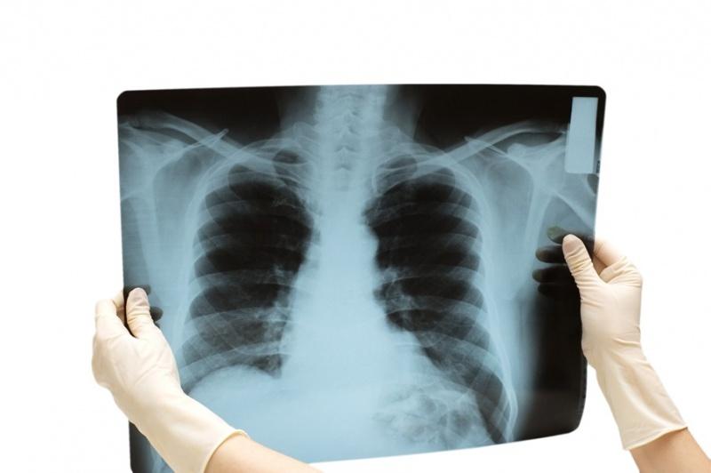 Боль в грудине посередине – в чём причина?