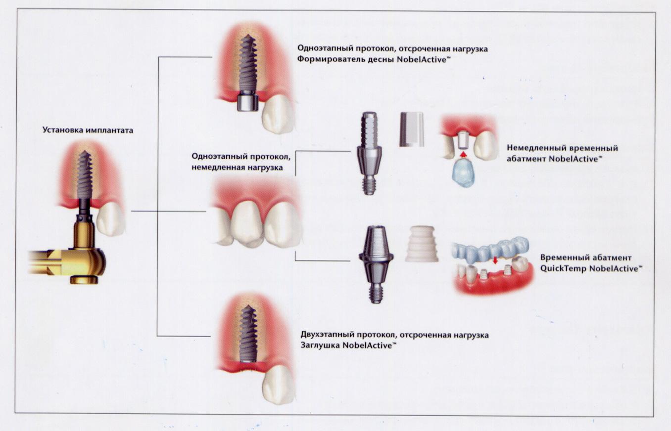 Абатмент: разновидности, имплантация, преимущества и недостатки