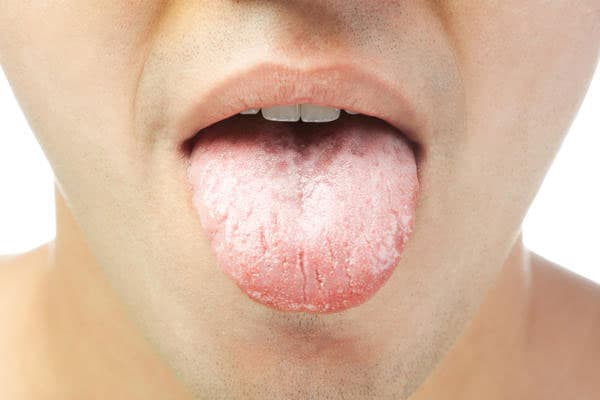 Кандидоз у мужчин. причины, симптомы и признаки, лечение кандидоза. :: polismed.com