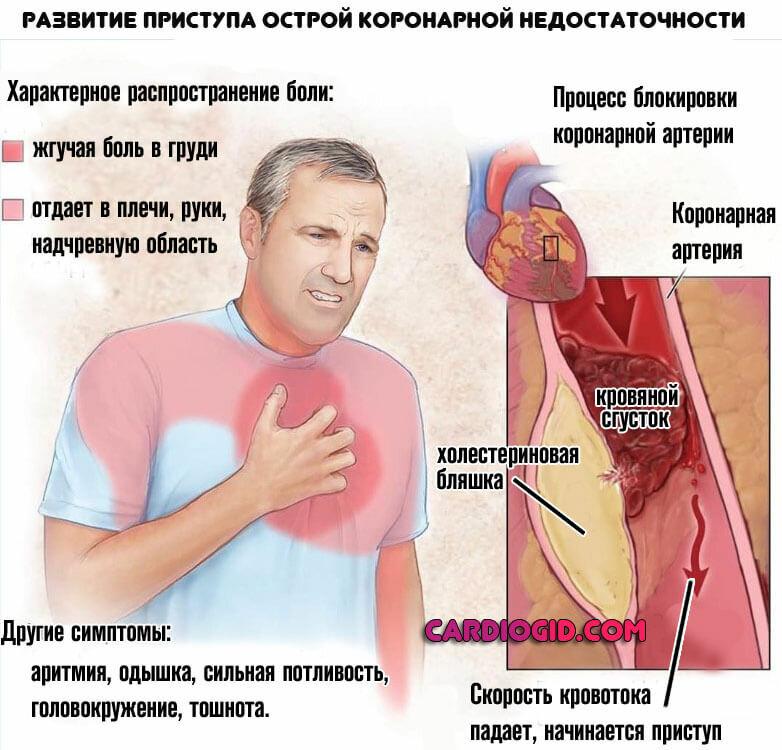 Инфаркт миокарда: причины, симптомы, лечение, последствия и осложнения
