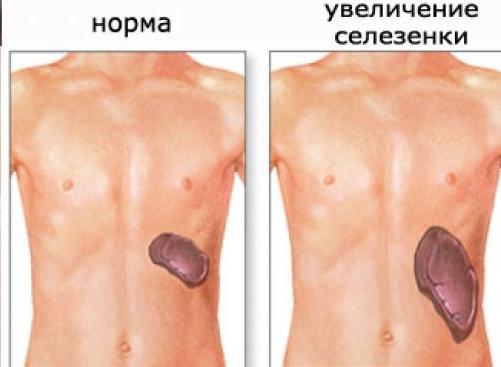 Спленомегалия: причины у взрослых, признаки и лечение