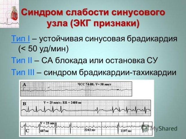 Синусовый ритм сердца на экг: что это значит, расшифровка