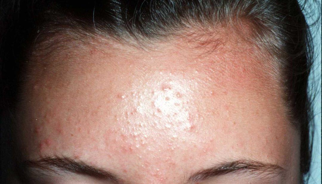 Лечение гиперкератоза кожи: методы, народные средства и отзывы