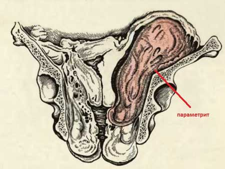 Параметрит - что такое, причины, симптомы, лечение, диагностика, прогноз