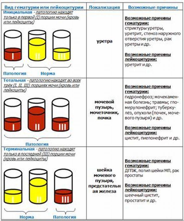 Микрогематурия и макрогематурия: основные отличия и проявления