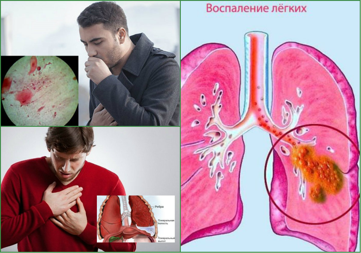 Туберкулёз: симптомы, первые признаки, причины, лечение, профилактика