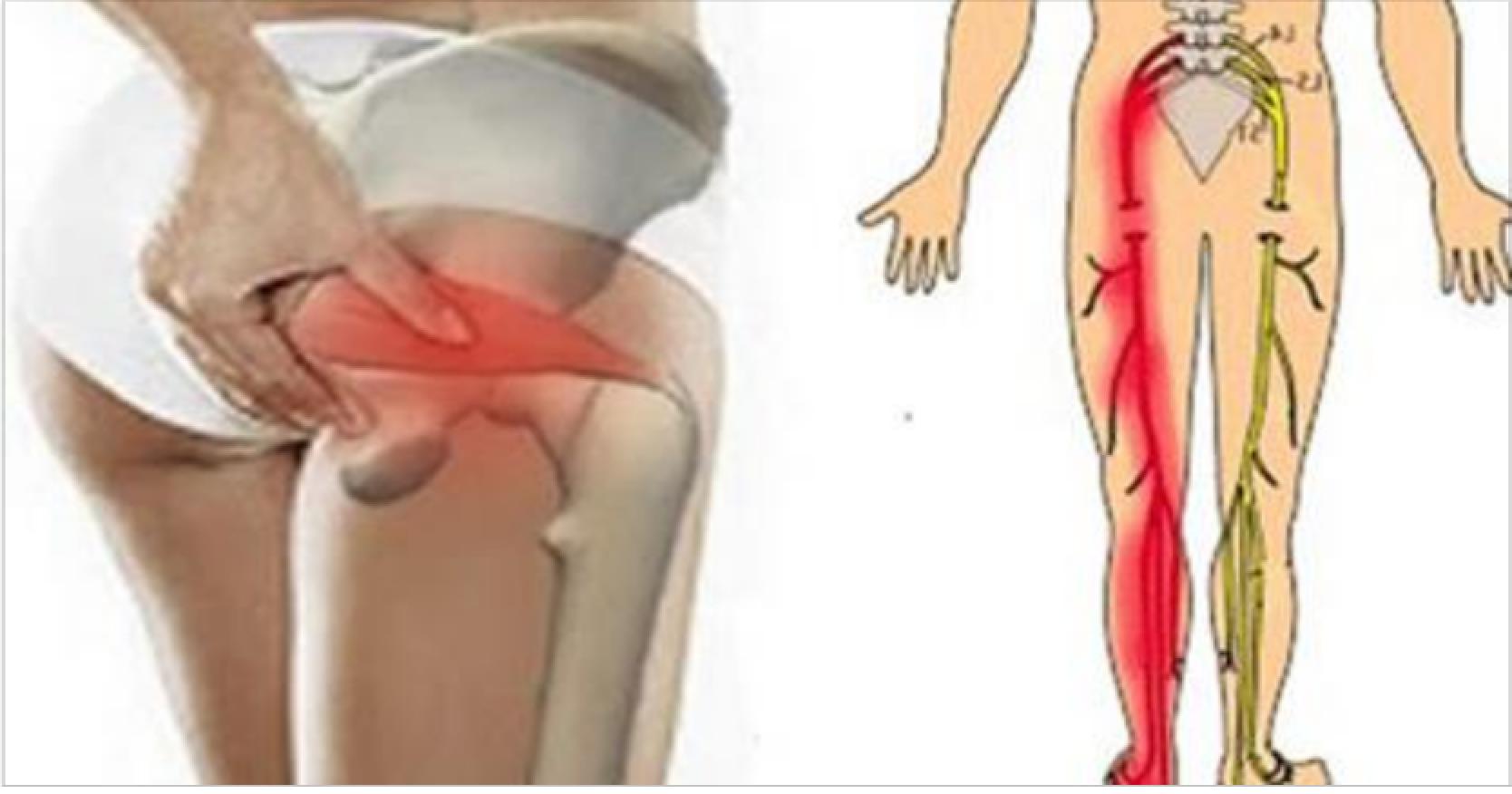 Ишиас — симптомы и боли, лечение в домашних условиях + препараты