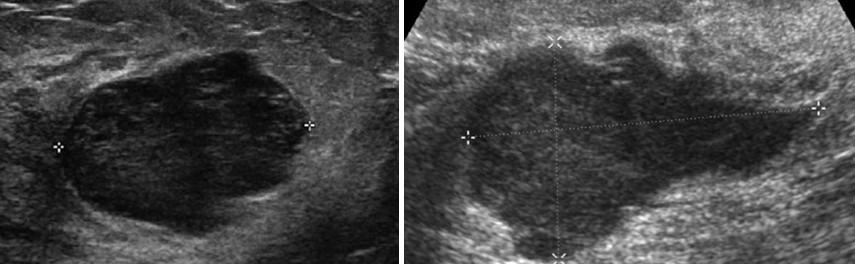Фиброаденома молочной железы: описание, формы, диагностика и лечение