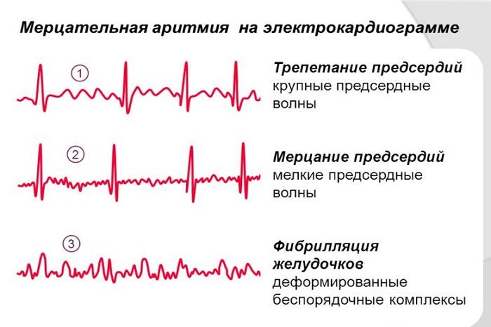Мерцательная аритмия сердца лечение таблетки - гипертонии нет