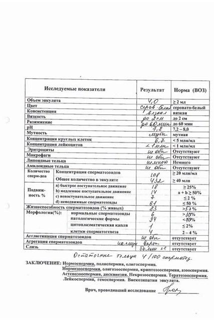 Расшифровка результатов спермограммы самостоятельно: нормы и показатели анализа, таблица, калькулятор