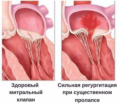 Пролапс митрального клапана: 1,2,3 степени, симптомы и чем опасен