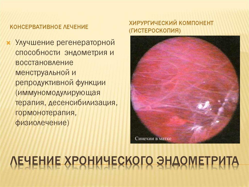 Хронический и острый метроэндометрит - что это такое, симптомы и лечение