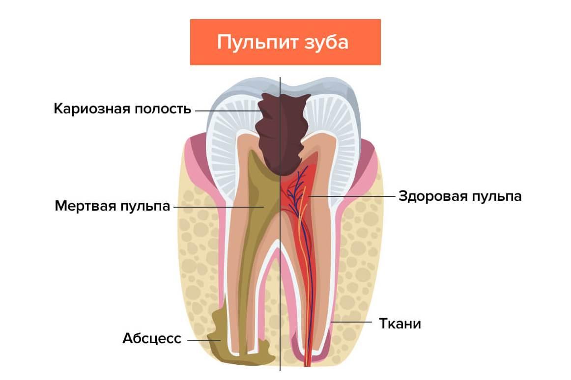 Пульпит зуба — что это такое и какие есть разновидности