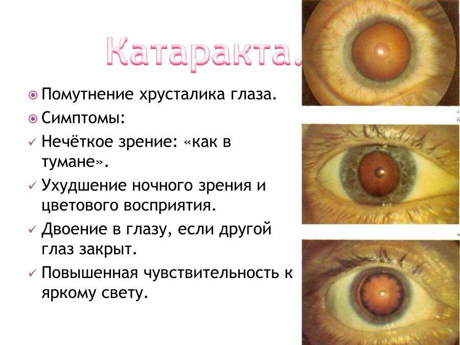 Деструкция стекловидного тела: симптомы, лечение | компетентно о здоровье на ilive