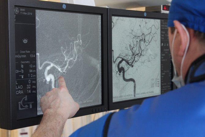 Аневризма головного мозга: симптоматика и методы лечения