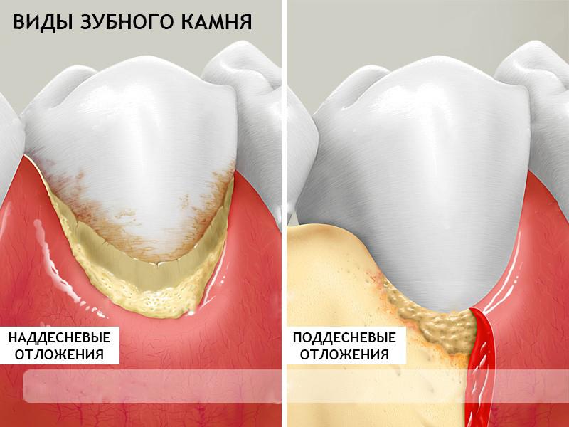 Что такое зубной камень, фото, причины отложения, механизм образования налета