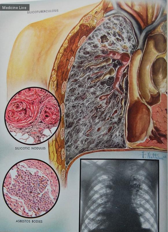 Что такое силикоз лёгких: симптомы, лечение pulmono.ru что такое силикоз лёгких: симптомы, лечение