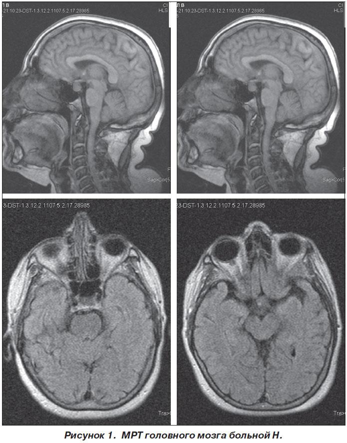 Микроаденома гипофиза: симптомы, лечение и прогноз жизни - сайт о