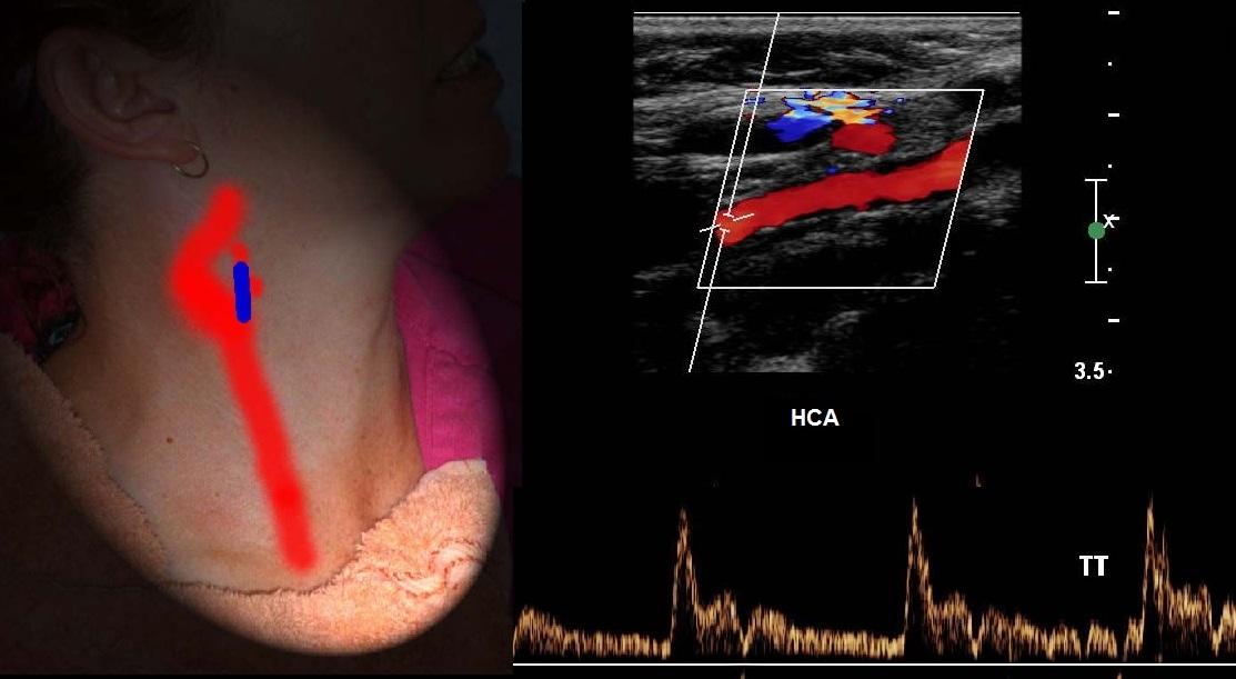 Исследование брахиоцефальных артерий методом дуплексного сканирования – uzi.one