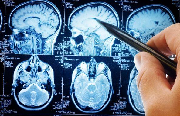 Чем отличается кт от мрт? в каких случаях магнитно-резонансная томография лучше компьютерной томографии