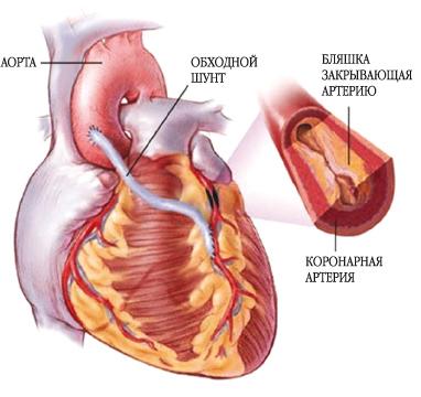 Рецидивы рака после операции: симптомы, способы предупреждения