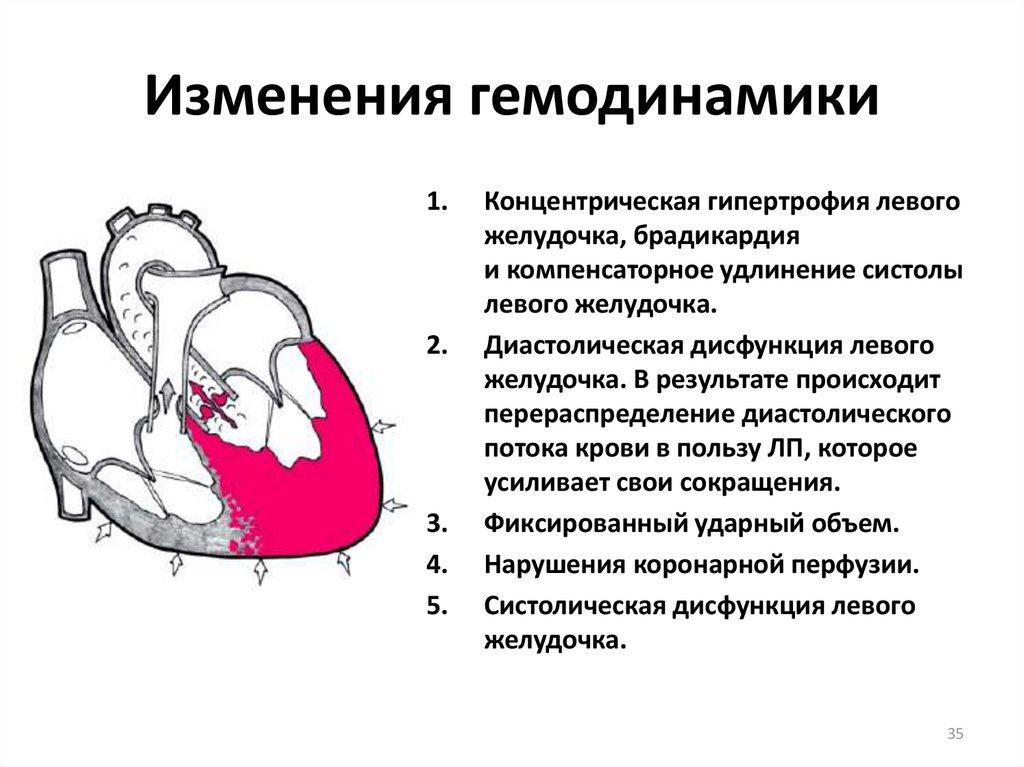 Кардиомегалия лечение - здоров.сердцем