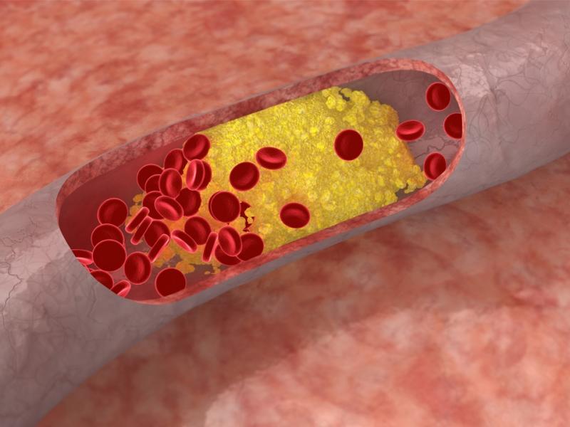 Гиперлипидемия: разновидности нарушений и признаки патологии, особенности терапии и методы диагностики, прогноз болезни и коррекция образа жизни