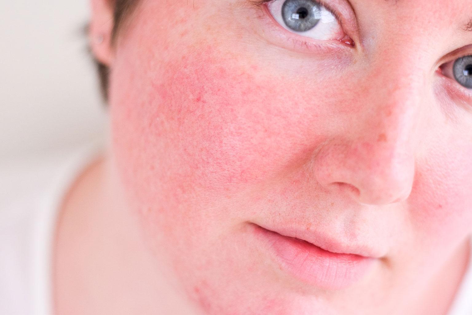 Гиперемия кожи - что это такое, симптомы и лечение, фото