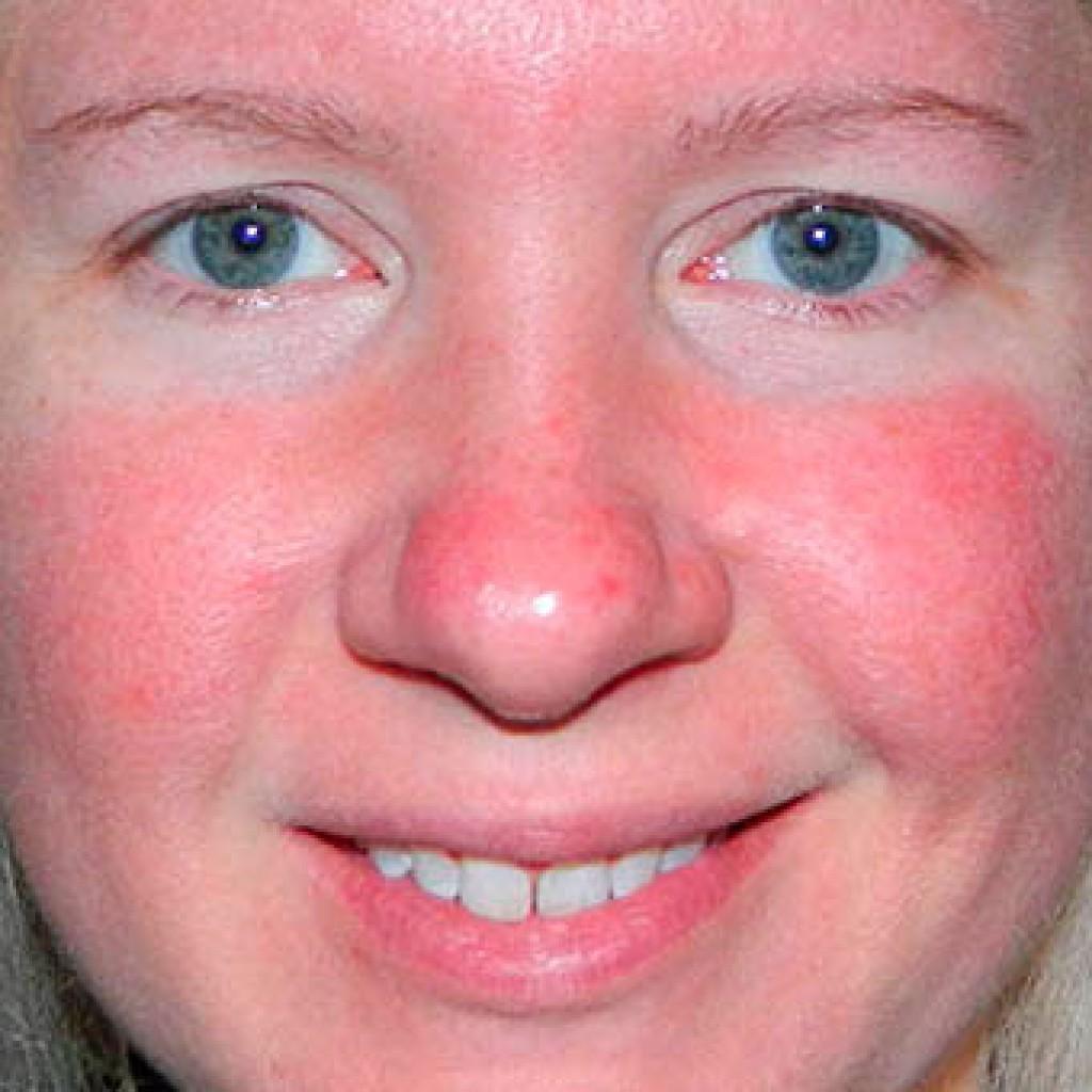 Что такое гиперемия кожи и как ее лечить