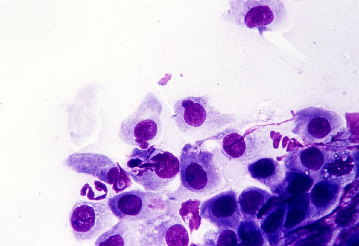 Диагностика хламидиоза: анализы на chlamydia trachomatis