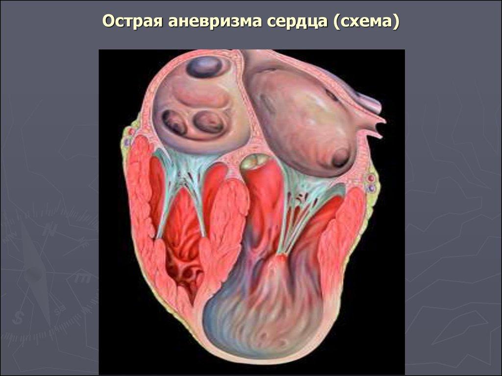 Аневризма сердца: симптомы, диагностика, лечение. осложнения аневризмы сердца