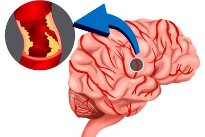 Церебральный атеросклероз что это такое, лечение и симптомы, через какое время наступает смерть