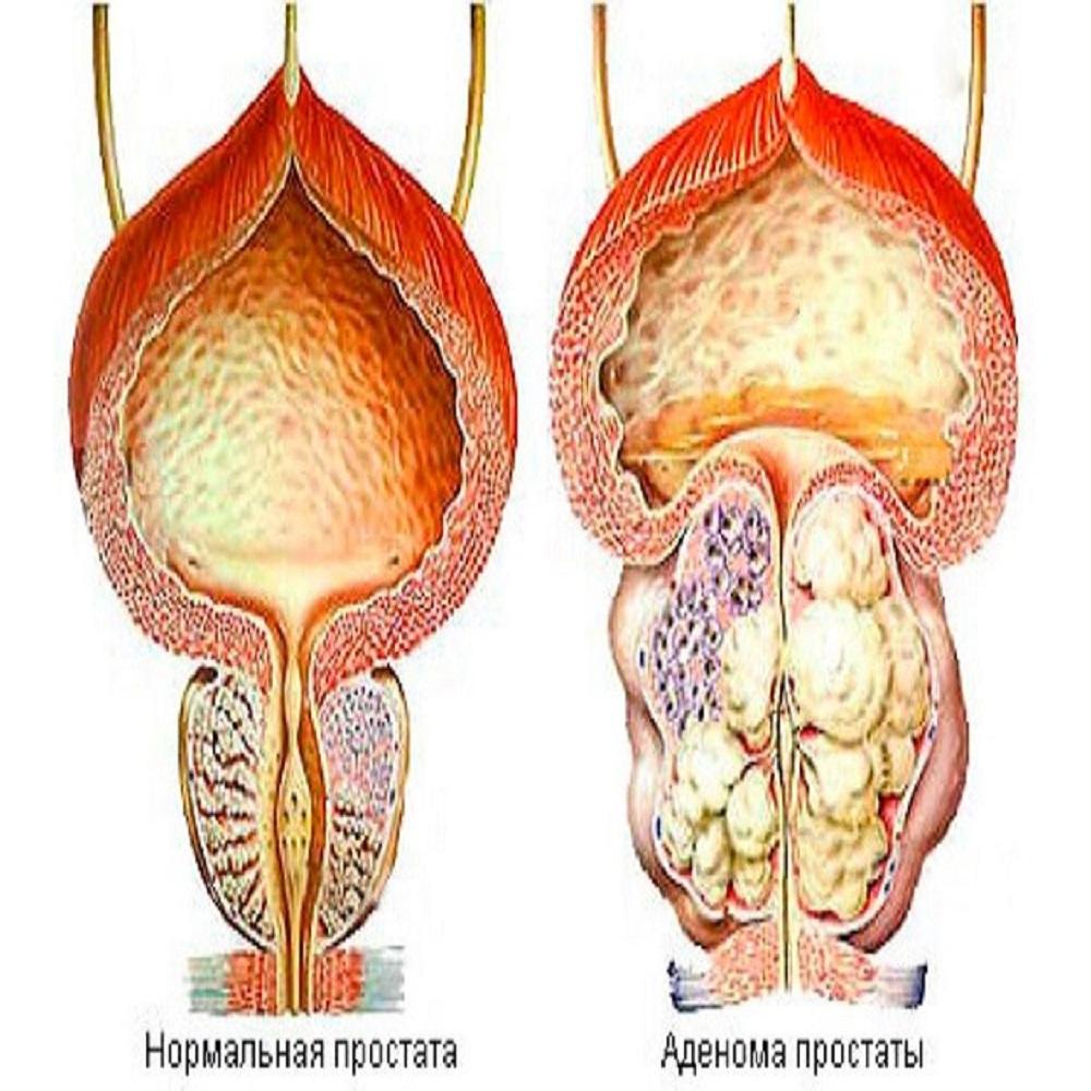 Современные способы лечения гиперплазии предстательной железы