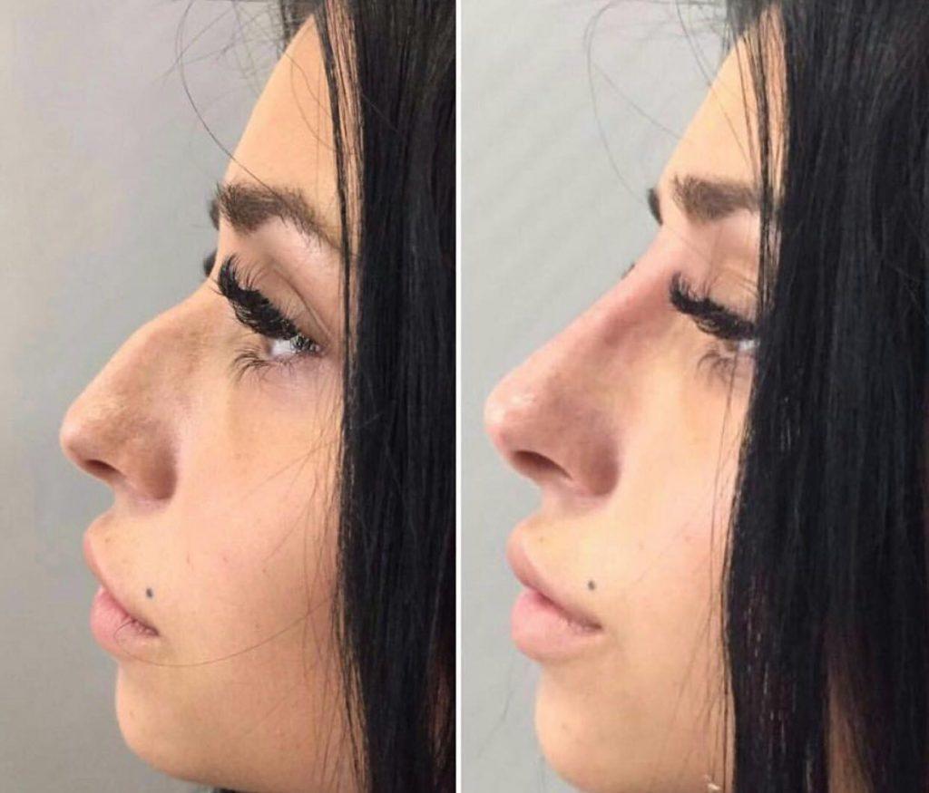 Ринопластика горбинки носа - цена, фото до и после | ринопластика носа