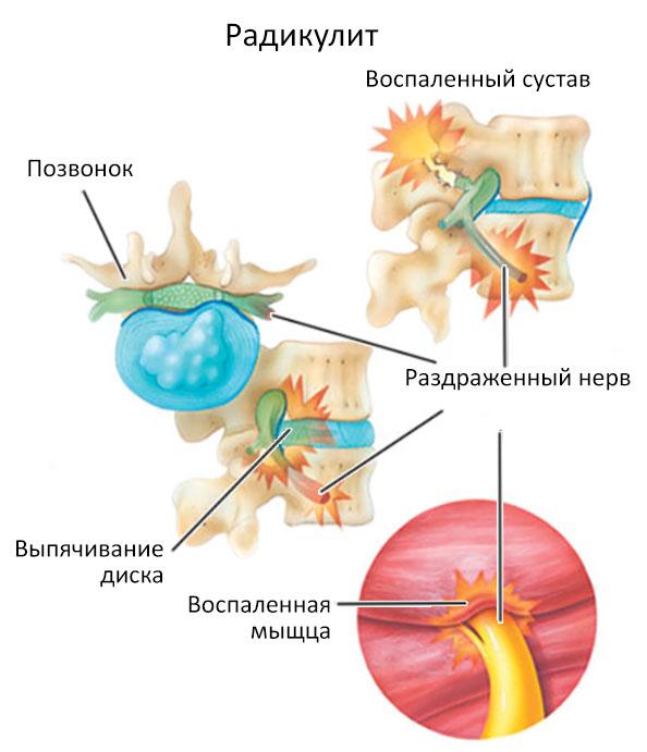 Дорсопатия: причины и лечение дорсопатии в домашних условиях