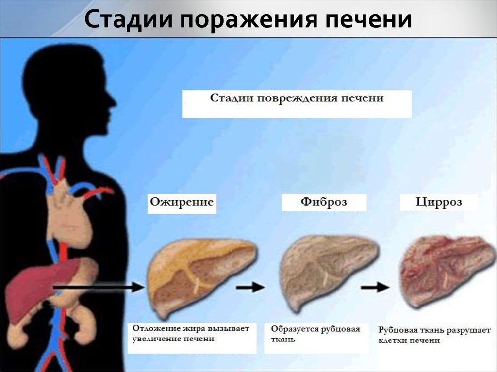 Методы лечения фиброза печени