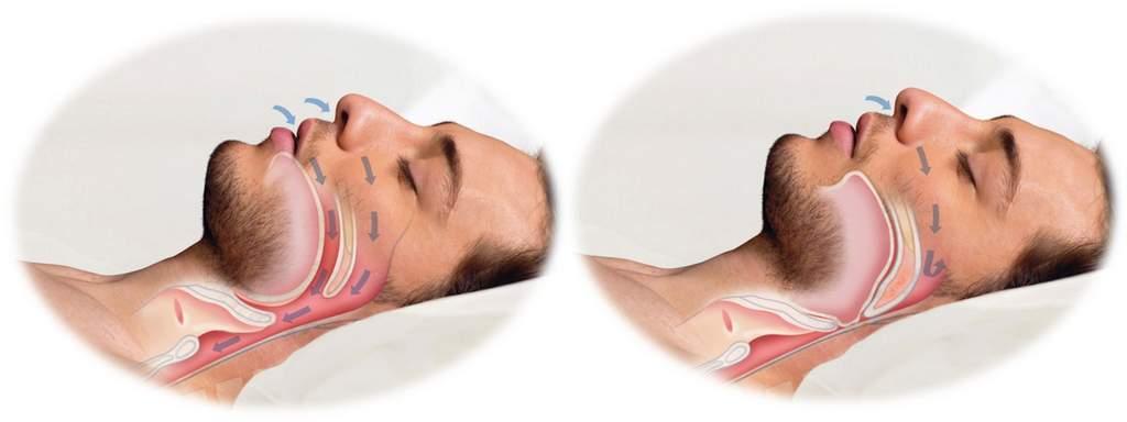 Апноэ сна: лечение в домашних условиях опасного недуга