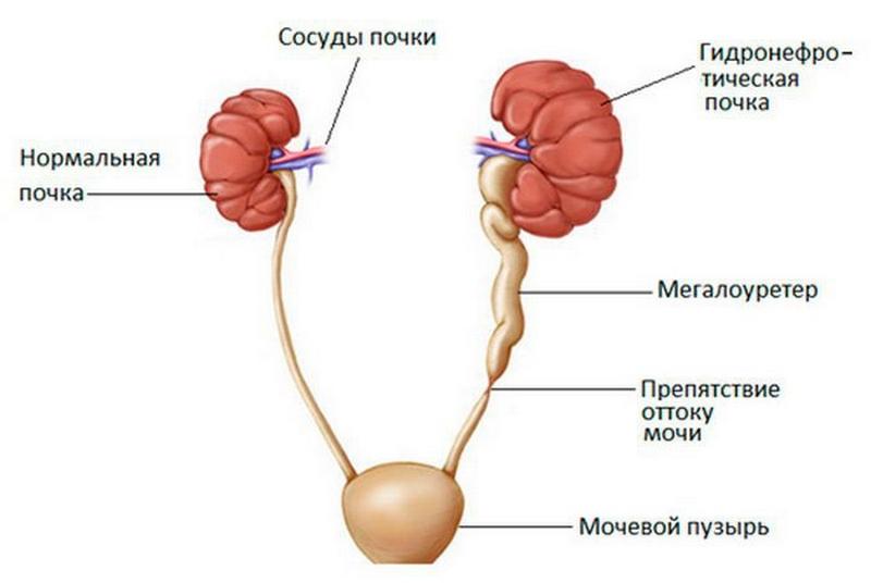 Гидронефроз почки: возможные причины и проявления патологии