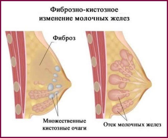 Диффузная кистозная мастопатия