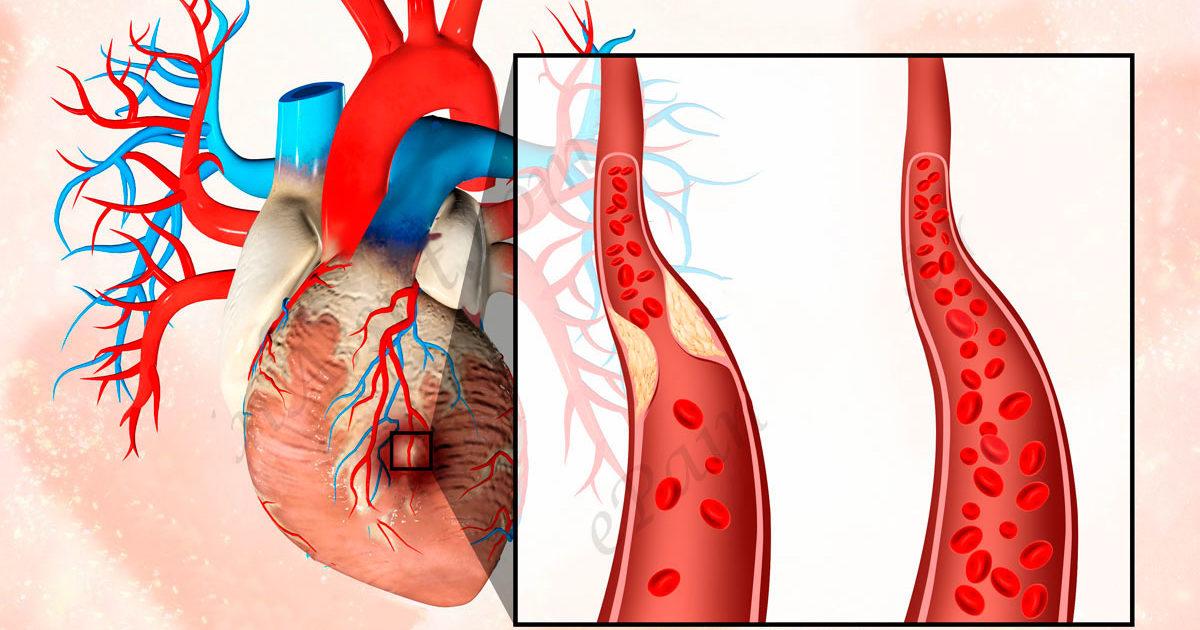 Что такое острый инфаркт миокарда, последствия и прогноз для жизни