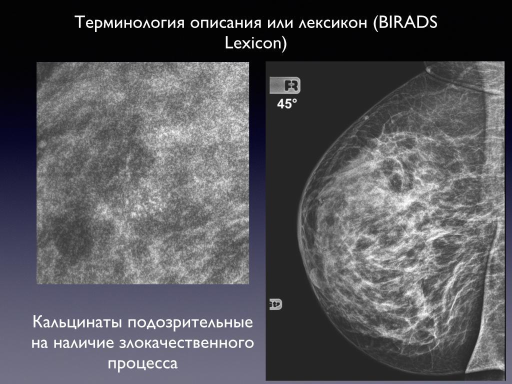 Кальцинаты в молочной железе у женщин: что это такое, причины, лечение народными средствами, диета