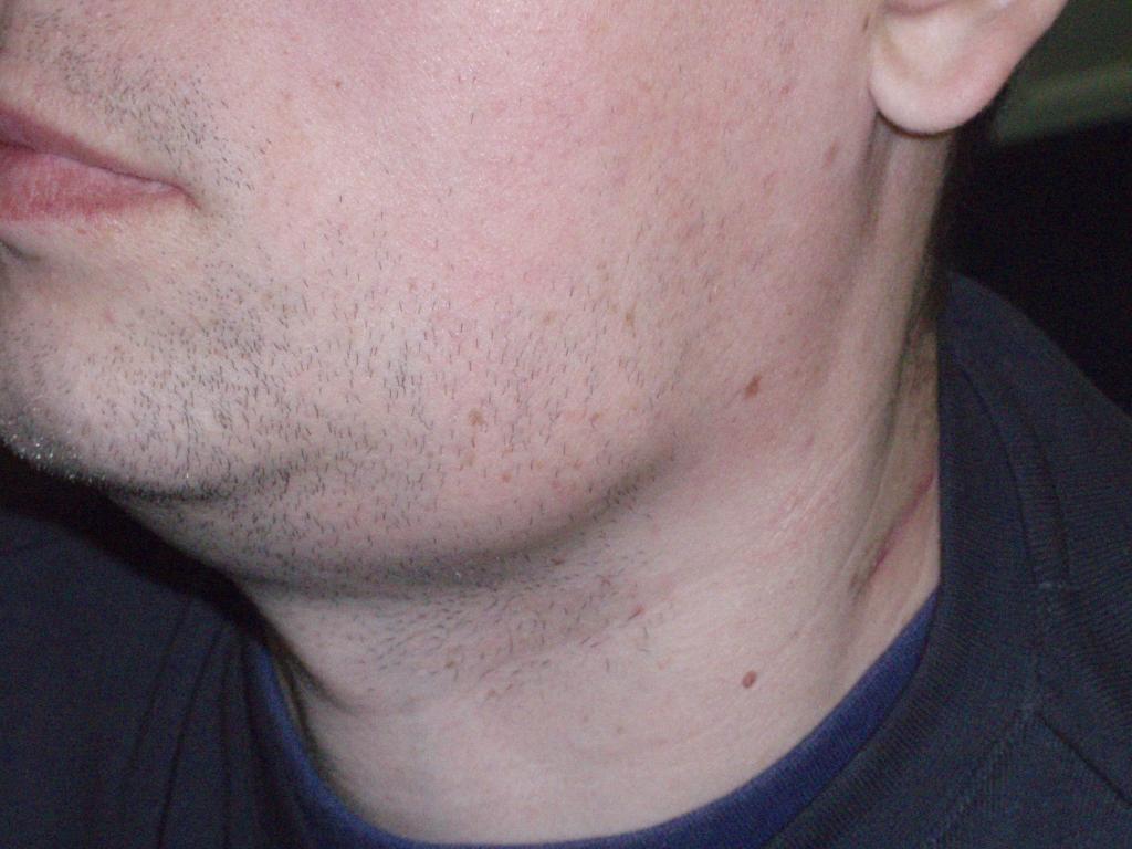 Воспаление лимфоузлов: лечение, причины, симптомами каких заболеваний является, фото