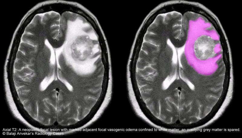 Отек головного мозга: причины возникновения вторичной патологии