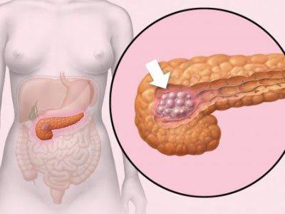 Липоматоз поджелудочной железы: что это такое, степени, лечение и диета
