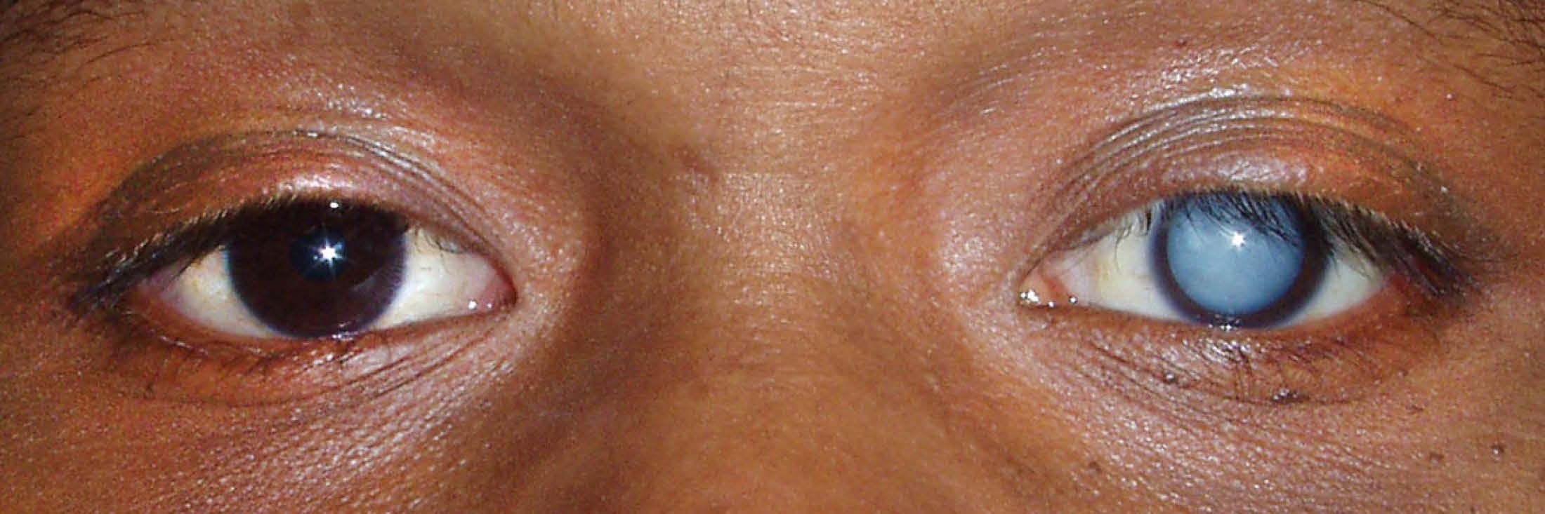 Виды катаракты: классификация заболевания по локализации помутнения